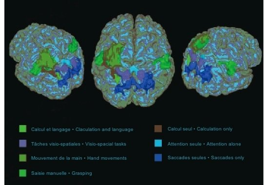 Cerebral areas